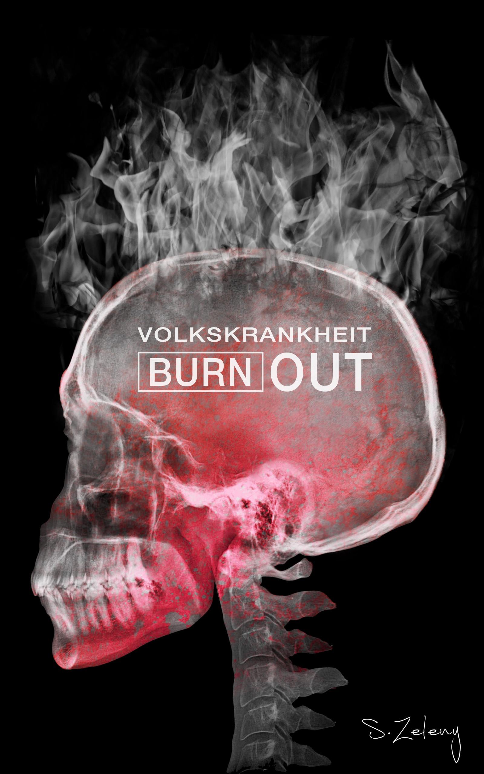 """""""Volkskrankheit - Burnout: Tipps zur Stressbewältigung"""" von Sebastian Zeleny"""